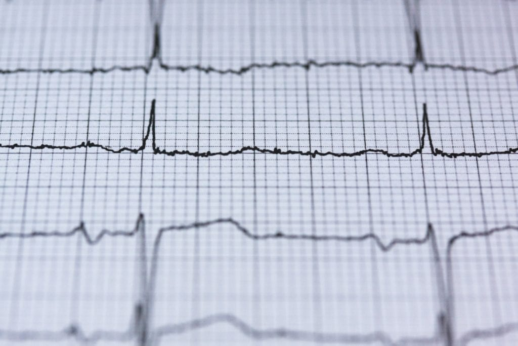 Using Heart Rate Variability as a Tool For Running